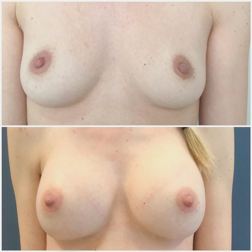 Voor en na foto's borstvergroting