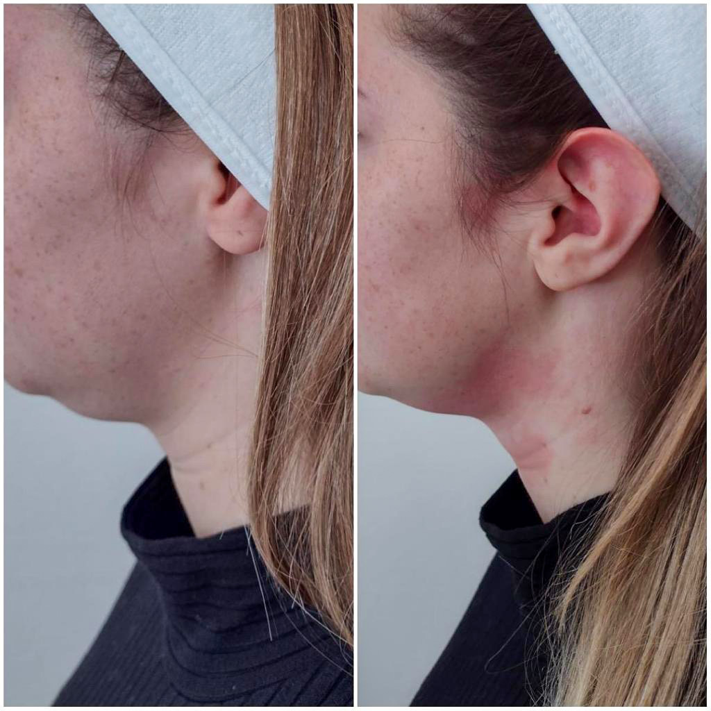 vrouw zijaanzicht voor en na hifu behandeling