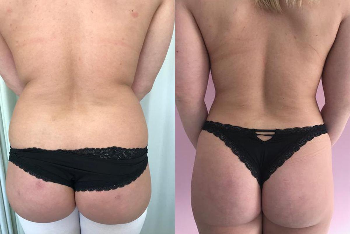 Vrouwenlichaam van achteren na liposuctie