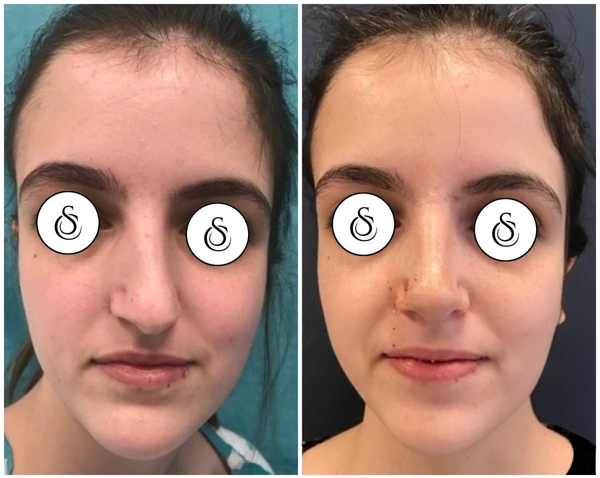 Neuscorrectie jonge vrouw scheve neus voor en na