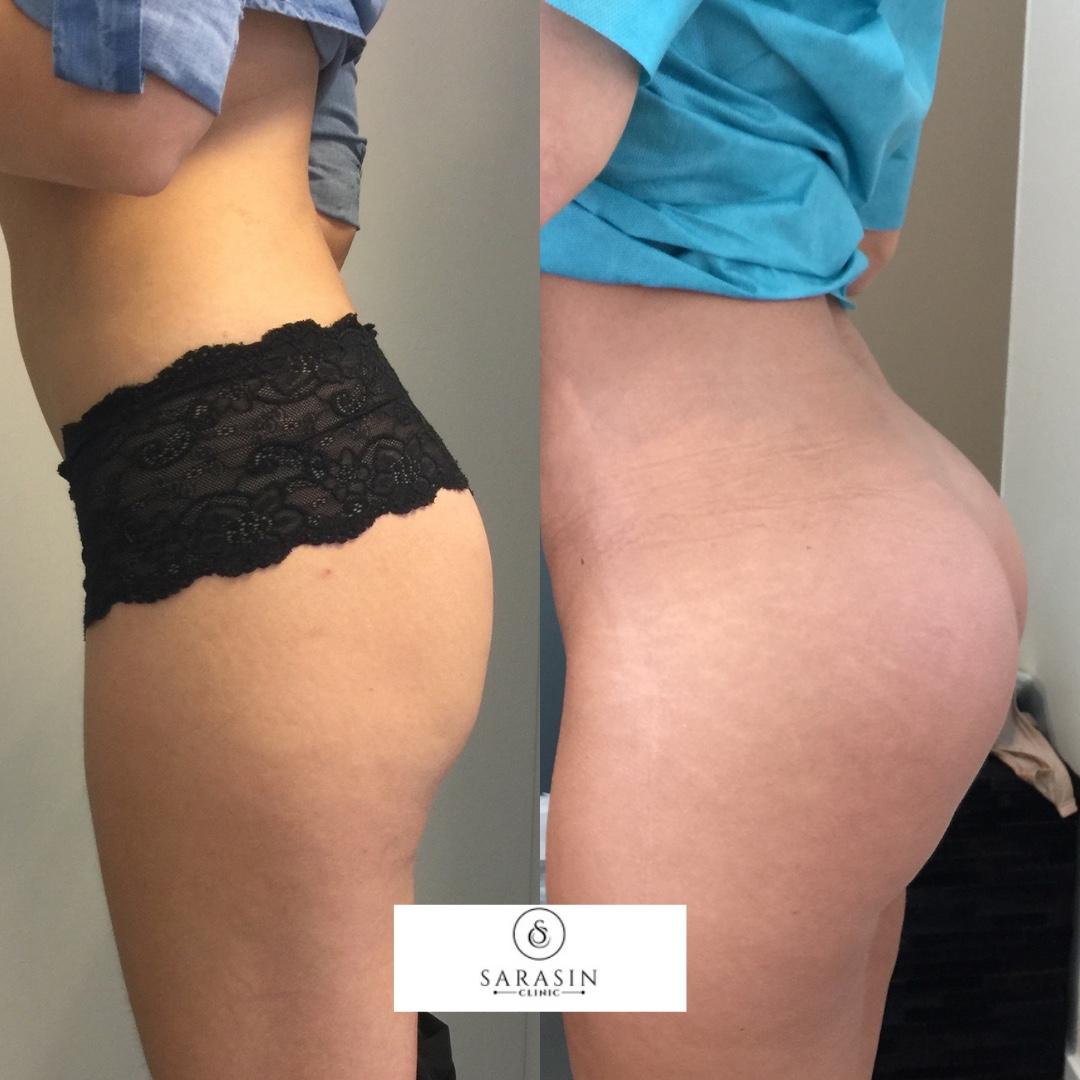 Voor en na foto van vrouw opzij behandeling Sarasin Clinic